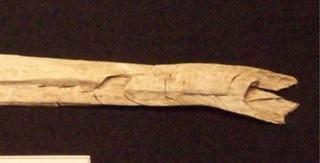 u-shaped fractures on a burned long bone