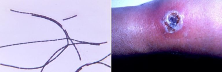 Left: Gram-stained photomicrograph depicts numerous Gram-positive, rod-shaped, Bacillus anthracis bacteria, which were arranged in long filamentous strands. Right: Photo of lesion located on the dorsum of a right hand