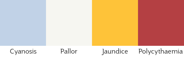 Four colour swatches resembling common skin conditions Cyanosis, blue; Pallor, light grey; Jaundice, yellow; and Polycythaemia; dark red