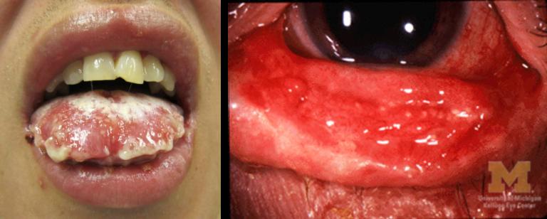 SJS/TEN symptoms. A woman with SJS/TEN symptoms on her lip and eye.